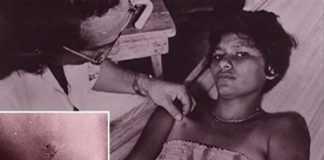 Fenômeno Chupa-Chupa Fonte da imagem: Reprodução/Arquivo UFO
