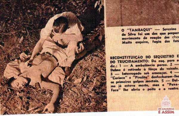 Caso Delmo – o tronco do estudante fora aberto de alto a baixo, do umbigo até o pescoço.