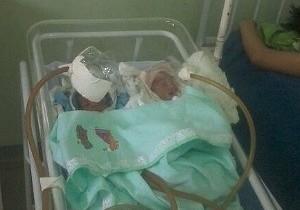 Inspeção constata falta de máscaras para prematuros em  Jutaí
