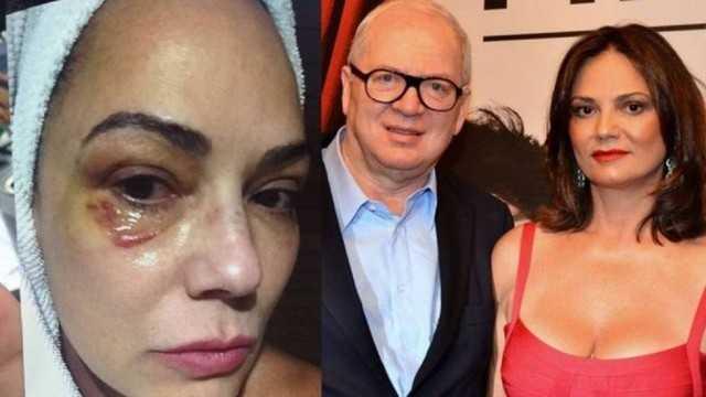 MP recusa vídeo de Luiza Brunet com Parisotto gravado por ela após agressão
