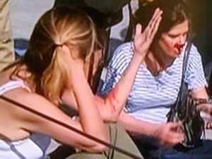 Câmera suspensa despenca e atinge pessoas em Parque Olímpico no Rio