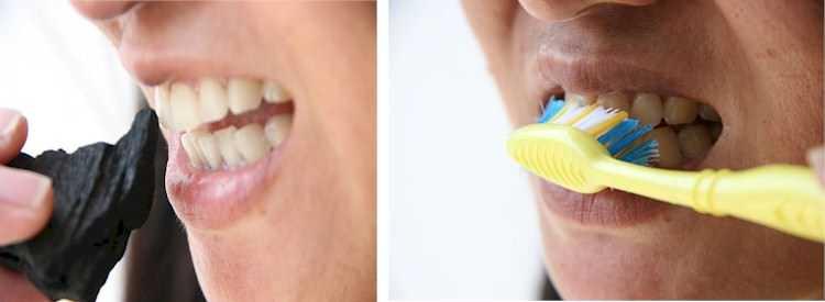 Carvão vegetal pode clarear os dentes, mito ou verdade ? - Imagem de divulgação