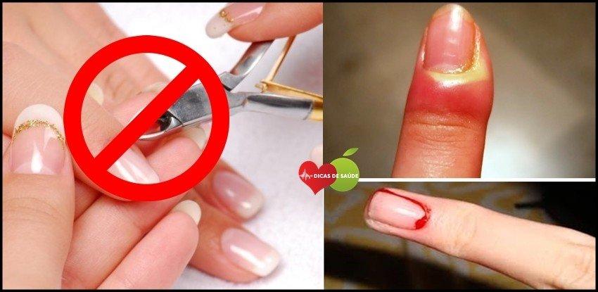 Como Remover as Cutículas SEM Alicate em 5 Minutos / Divulgação