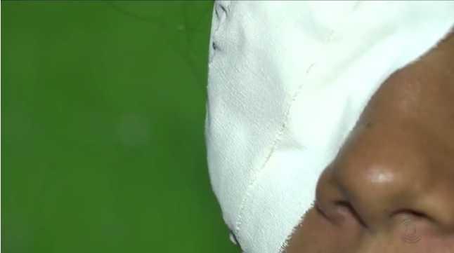 Grávida teve olhos, boca colados após ser raptada - Imagem de reprodução G1