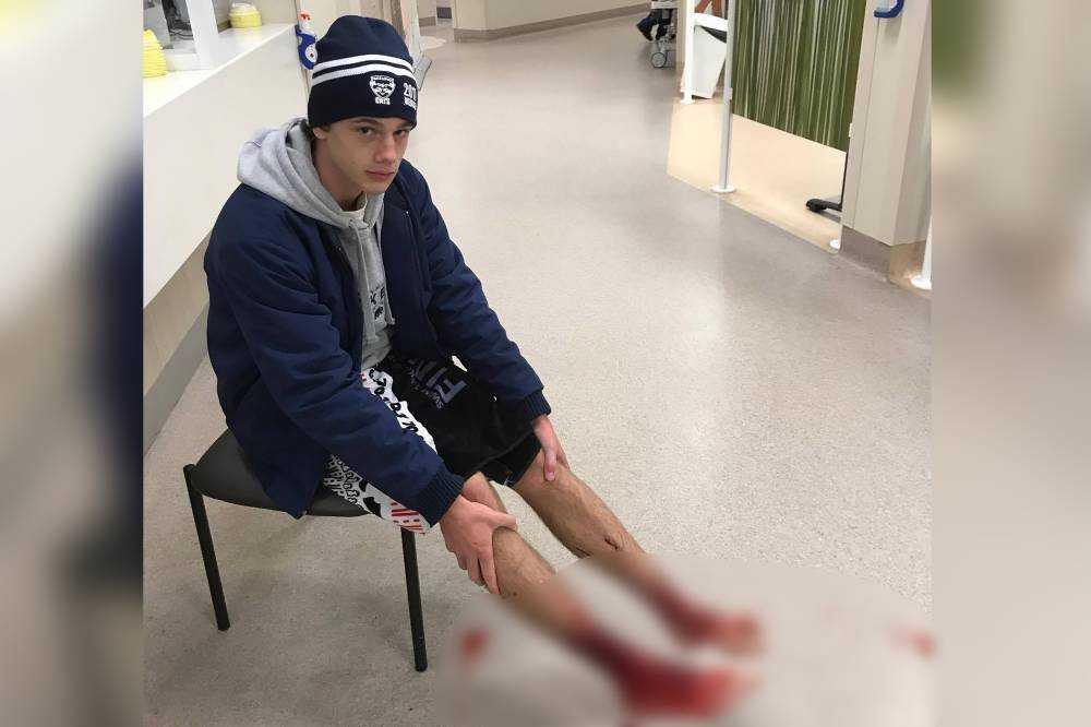 Imagem feita por Jarrod Kanizay, pai do adolescente, mostra o adolescente com os pés feridos à espera de atendimento médico