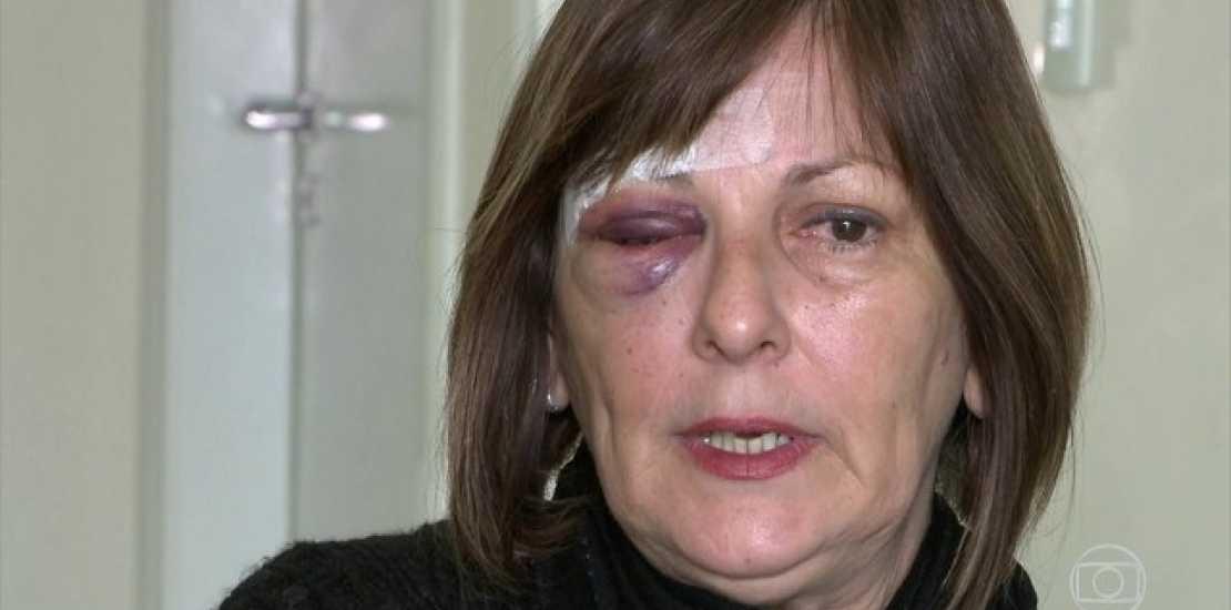 A professora Marcia Friggi ficou ferida após a agressão de um aluno de 15 anos / Divulgação