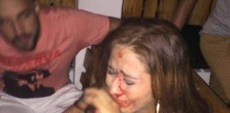 Mulher sofre agressão física no Deck Rock Beer em Manaus e publicação viraliza nas redes sociais