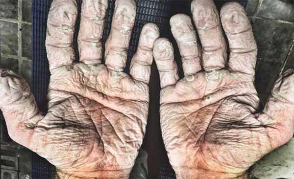Alex Gregory bicampeão olímpico de remo mostrou aos seus seguidores como suas mãos estavam após muito tempo em luvas molhadas. / Divulgação