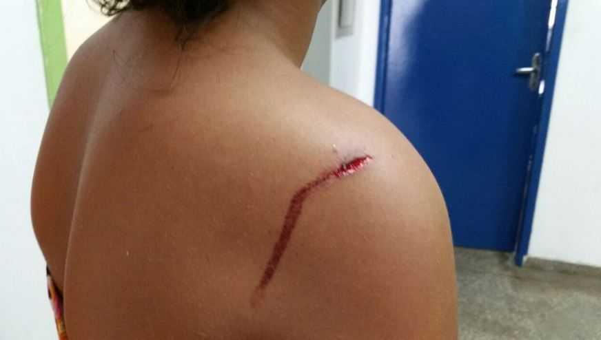 Menina ferida à facada no ombro / Foto: Gilson Mello