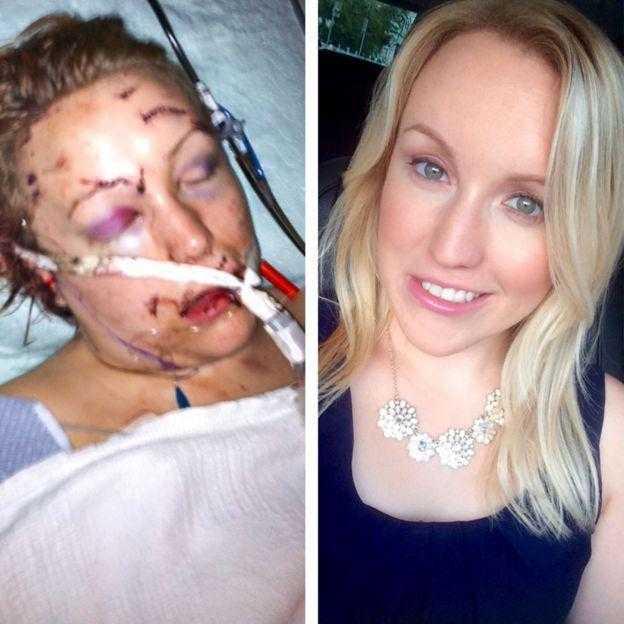 Melissa ficou muito machucada após o ataque e percorreu um longo caminho até se recuperar  / Arquivo Pessoal
