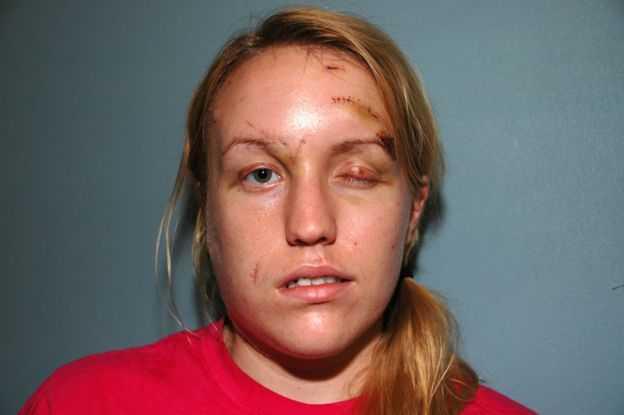 'Quando me olhei no espelho pela primeira vez após o ataque, eu só chorava', disse Melissa  / Arquivo Pessoal