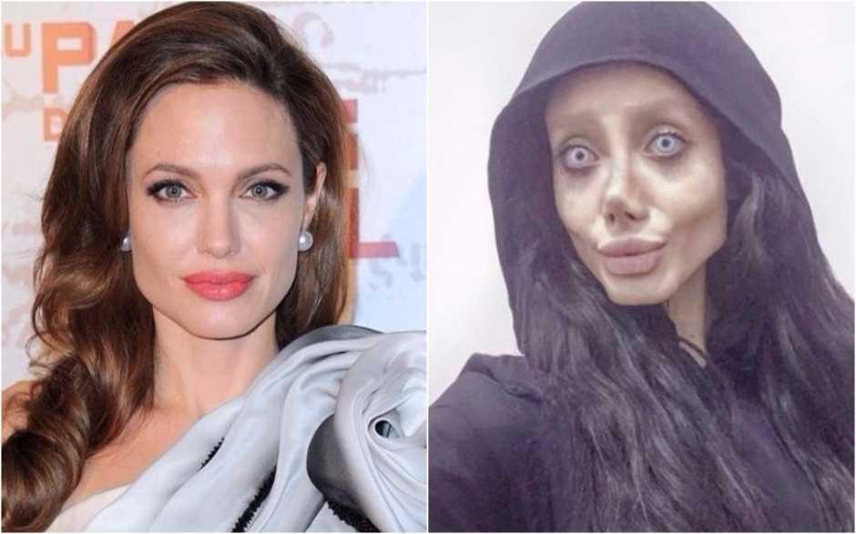Mulher faz 50 plásticas para ficar igual a Angelina Jolie, mas fica com aparencia medonha - Imagem: Divulgação