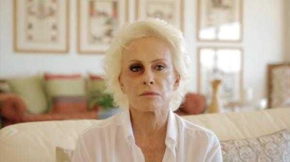 Ana Maria Braga publicou vídeo explicando o motivo do olho roxo