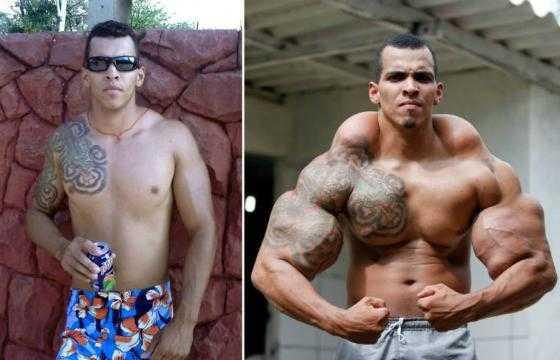 Tentando ser o 'Incrível Hulk', brasileiro quase tem seus braços amputados / Divulgação
