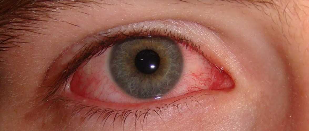 Alerta: Se você usa lentes de contato, então precisa saber disso - Imagem: Divulgação