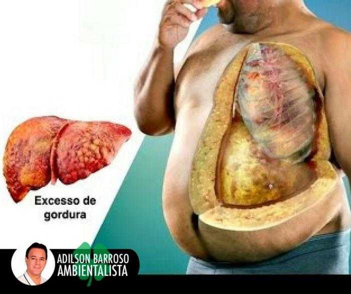 Conheça 5 remédios caseiros capazes de eliminar a gordura no fígado / Divulgação