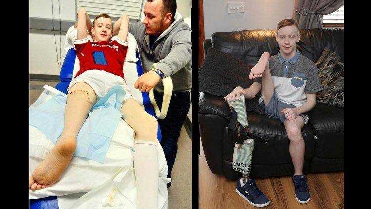 Médicos implantam uma perna ao contrário em adolescente - Imagem: Divulgação