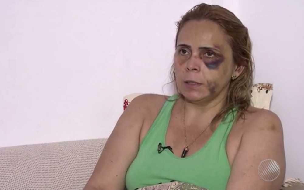 Com hematomas pelo rosto, ex-namorada do humorista Renato Fechine denuncia agressões na Bahia - Imagem: Reprodução/TV Bahia