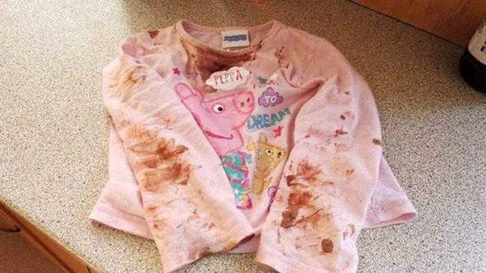 criança aparece com erupções no rosto depois de seu aniversário de 2 anos / Divulgação