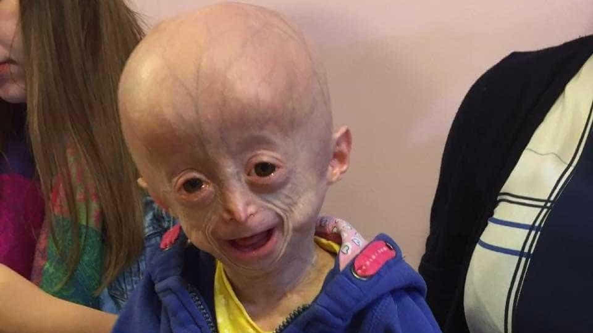 Morre Lucy Parke, menina com doença rara que a envelhecia 8 vezes mais rápido / Divulgação