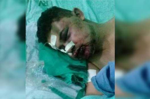 JR Carreiro foi visto pelo agressor entrando em sua casa / Foto : Divulgação