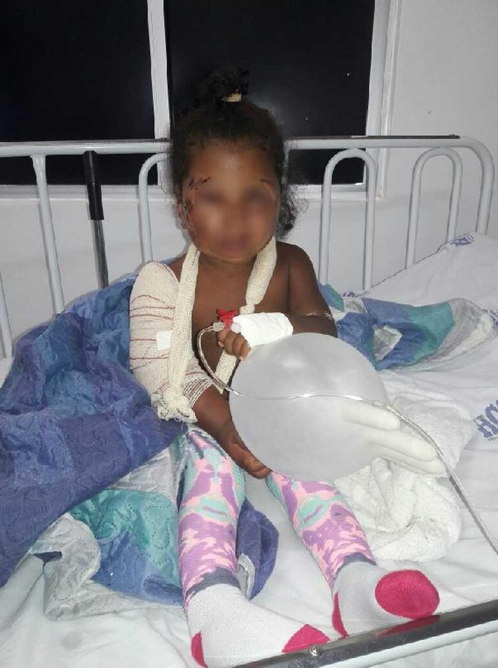 Criança de 2 anos fica com rosto desfigurado e braço quebrado após ser atacada por cachorros - Imagem: Tatiane Valadares/Arquivo pessoal