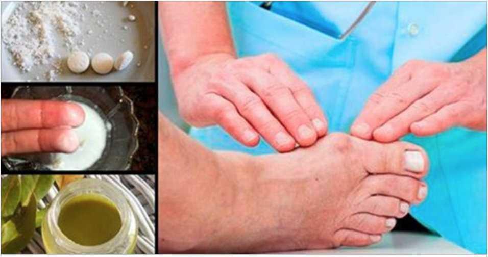 4 formas caseiras de eliminar a dor do seu joanete definitivamente! / Foto : Divulgação