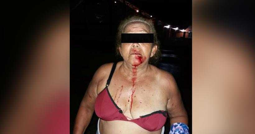 Idosa é espancada em Carauari e família acusa polícia de omissão / Foto: Reprodução