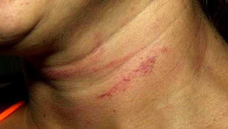 SURRADA: Mulher apanha do marido ao pedir para sair com amigo / FOTO: Divulgação