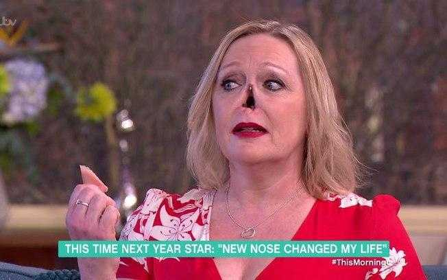 Mulher sem nariz impressiona (Crédito: Reprodução)