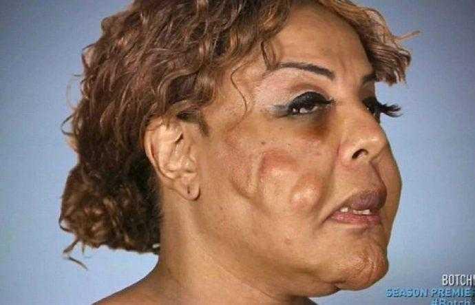 Médico monstro injeta cimento no rosto de paciente. Uma década depois ela está totalmente diferente da época da atrocidade.