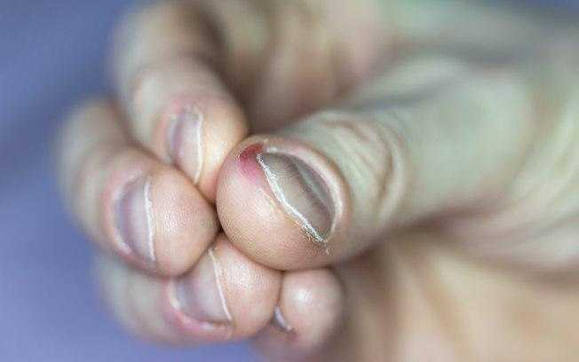 Roer as unhas pode causar infecções graves no corpo / Foto : Shutterstock