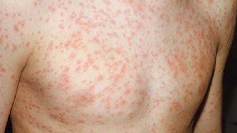 Aumento de 90 casos de sarampo confirmados são registrados em uma semana, em Manaus - Imagem: Divulgação