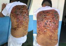 """Presos mostram costas repletas de cortes após """"salve"""""""