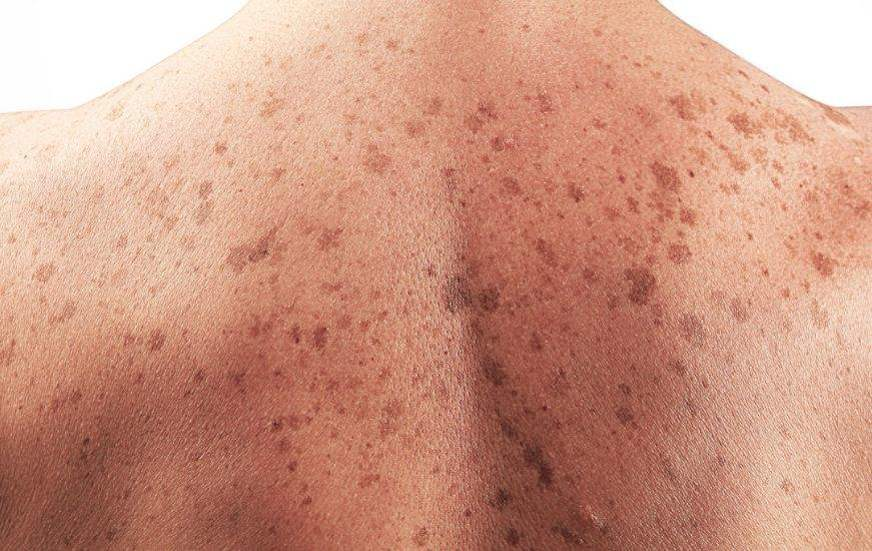 Dezembro Laranja quer conscientizar para prevenção ao câncer de pele