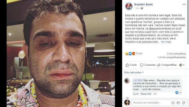 Humorista Evandro Santo pede R$ 60 mil de indenização por agressão em Marília
