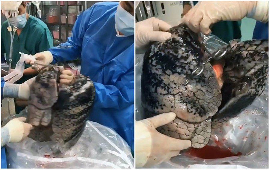 Médicos ficam chocados ao ver pulmão de homem que fumou durante 30 anos / Foto: reprodução