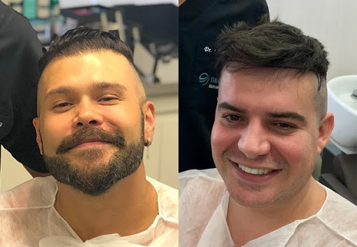 As melhores clínicas de transplante de cabelo da Espanha