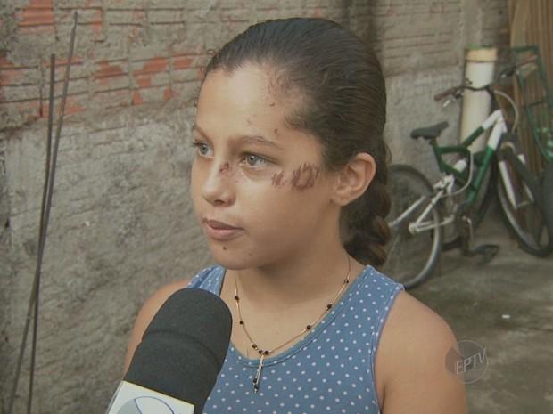 Menina foi uma das feridas no acidente de ônibus em Nova Odessa (Foto: Reprodução/EPTV)