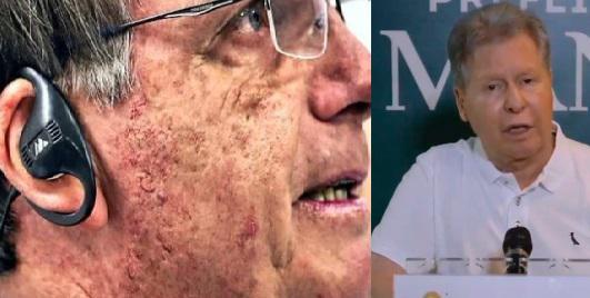 """Prefeito Artur detona Bolsonaro """"Ele é hoje o principal aliado do vírus"""""""