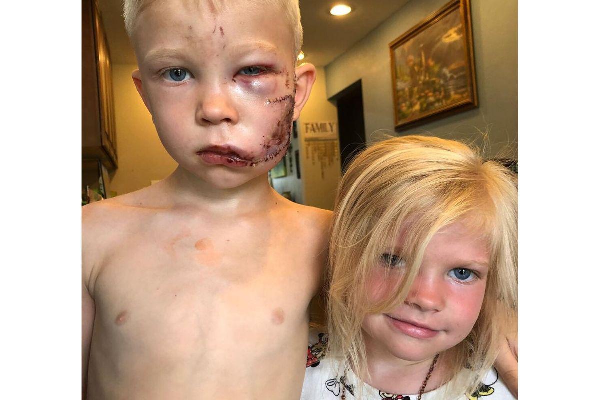 Bridger levou 90 pontos no rosto depois de salvar irmã (Foto: reprodução Instagram @nicolenoewalke)