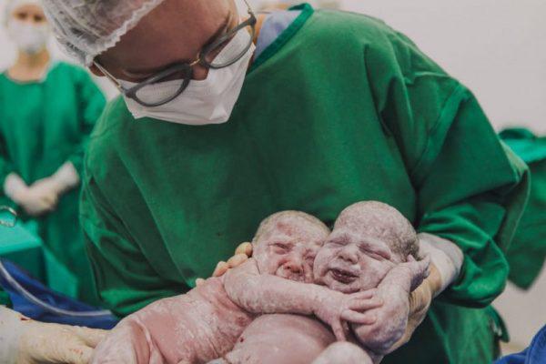Liz e Beatriz se abraçaram ao nascer - Foto: Bruna Costa